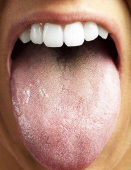 Caring for Your Tongue: Why you Should Clean your Tongue and How