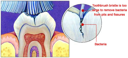 Tooth fissure
